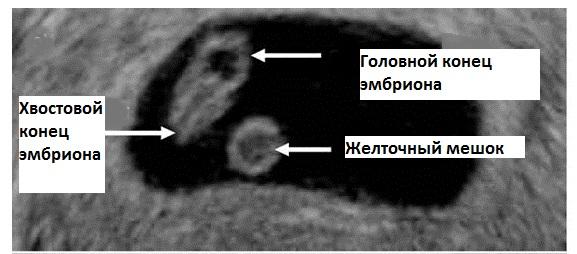 Плодное яйцо 3 мм какой срок беременности