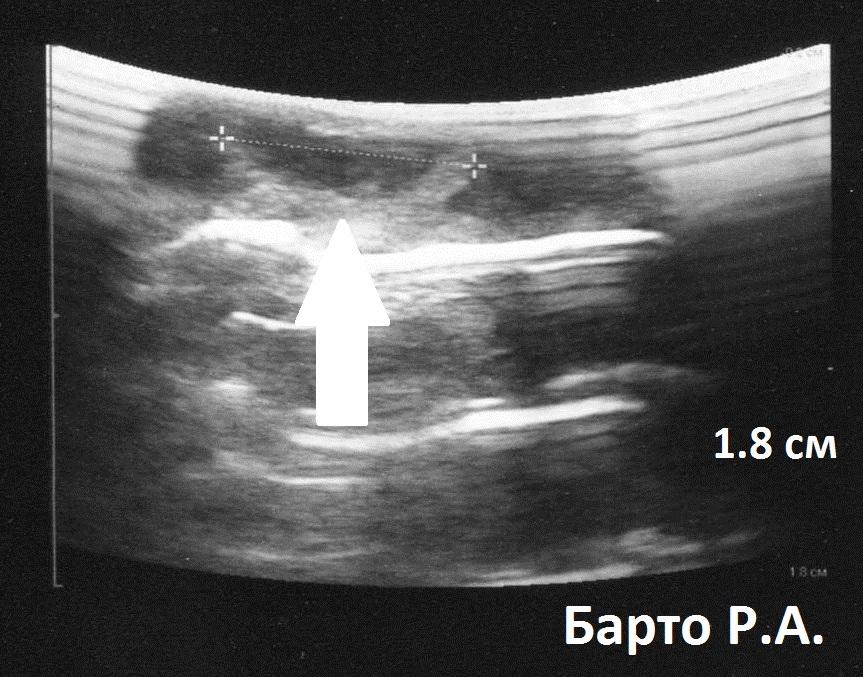Можно ли забеременеть с эндометриоидной кистой яичника