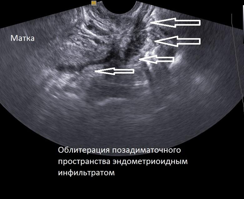 Ретроцервикальный эндометриоз и его лечение